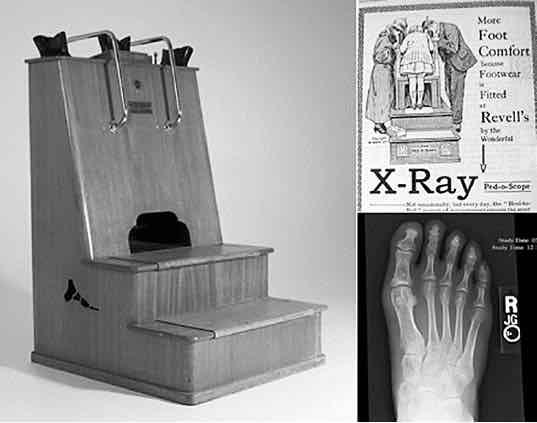 Röntgen_figuur_2